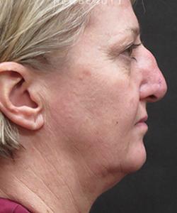 dr-elie-levine-necklift-rhinoplasty-b