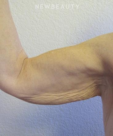 dr-jennifer-e-boll-arm-lift-b