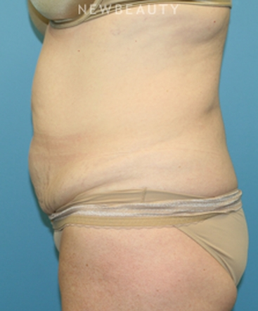dr-christine-hamori-tummy-tuck-with-liposuction-b