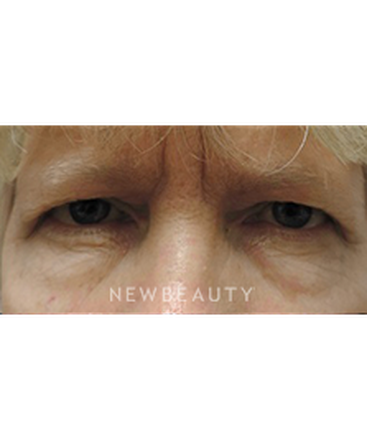 dr-jasmine-mohadjer-blepharoplasty-b