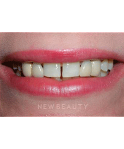 dr-guy-lewis-dental-implants-b