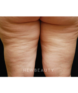 dr-kenneth-beer-lasers-cellulite-treatment-b