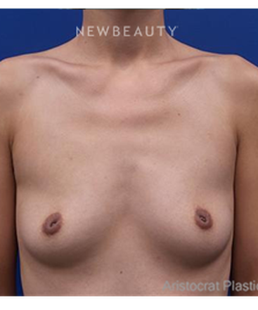 dr-kevin-tehrani-breast-lift-with-silicone-implants-b