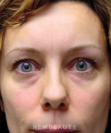 dr-mokhtar-asaadi-eyelift-b