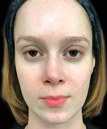 dr-heidi-waldorf-skin-color-b