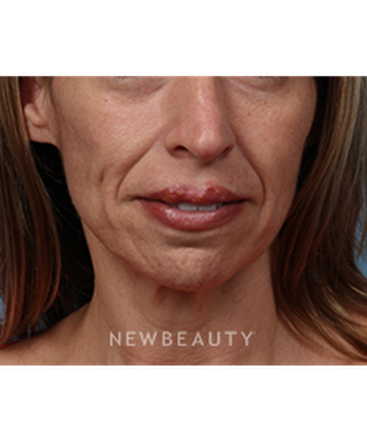 dr-kathleen-behr-injectables-b