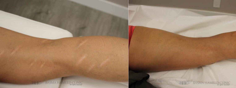 e7973b53f Micropigment Tattoo to Camouflage Scars - NewBeauty