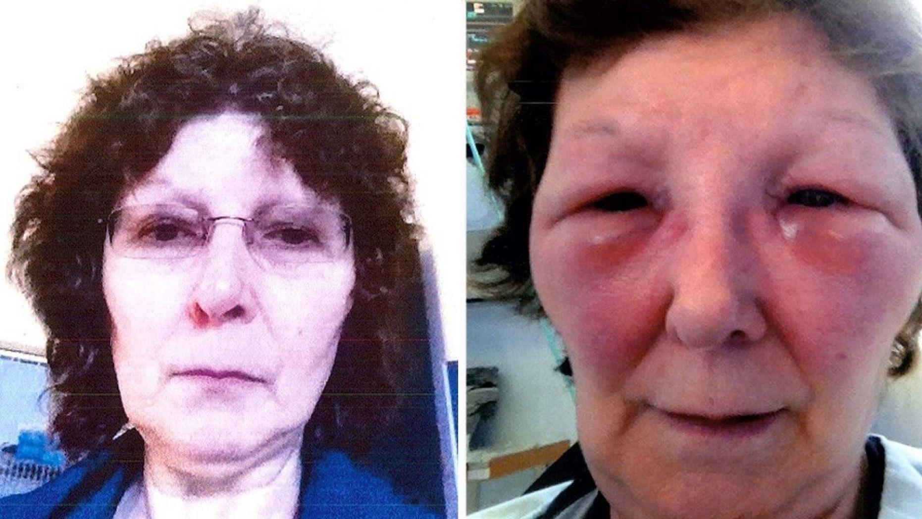 Bad Botox News Dailybeauty Newbeauty