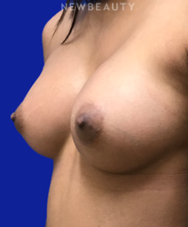 dr-goretti-h-taghva-endoscopic-breast-augmentation-b