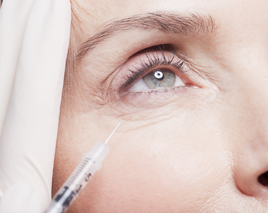 2 Rare, But Real, Side Effects Everyone Should Know Before Getting Fillers