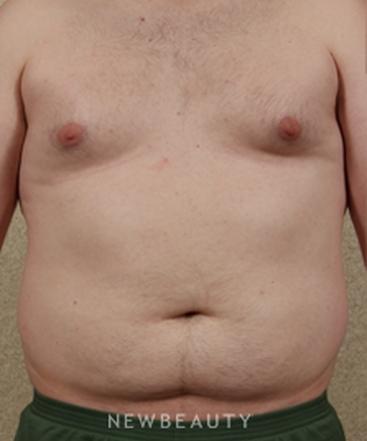 dr-benjamin-schlechter-torso-tightening-b
