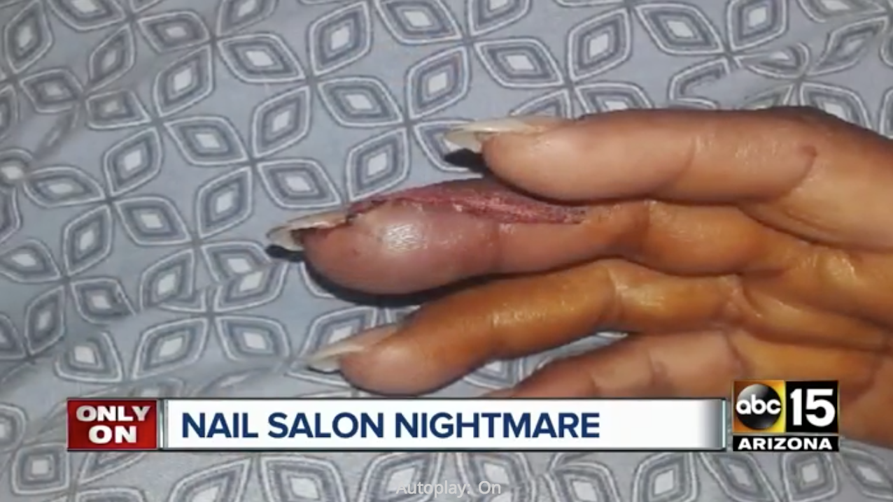 Infections From Salon Manicure - Health + Wellness - Spa ...