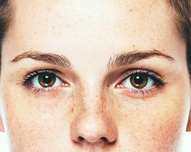 The Real Reasons Why Your Skin Is Discolored