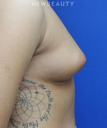 dr-joseph-russo-enhancing-curves-breast-ebg-b