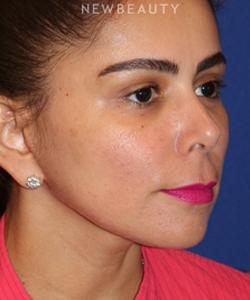 dr-dilip-d-madnani-mini-facelift-b