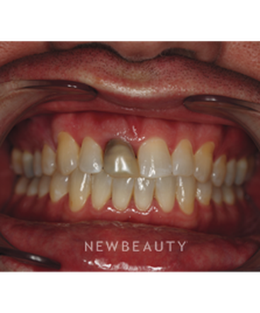 dr-neal-patel-dental-implant-b