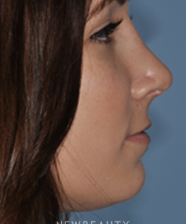 dr-r-laurence-berkowitz-nasal-hump-removal-b