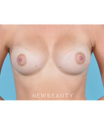 dr-bradley-bengtson-breast-augmentation-b
