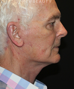 dr-david-boudreault-facelift-b