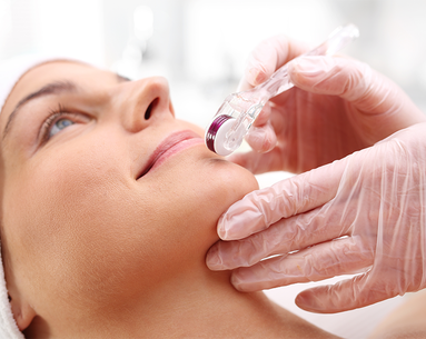 Is At-Home Lip Needling the Fastest Way to Plump Your Lips Without Fillers?