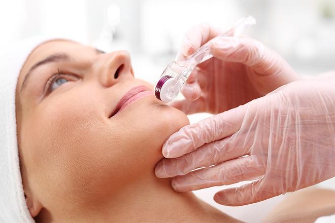 Lip Needling for Plumper Lips - Anti-Aging - Skin Care