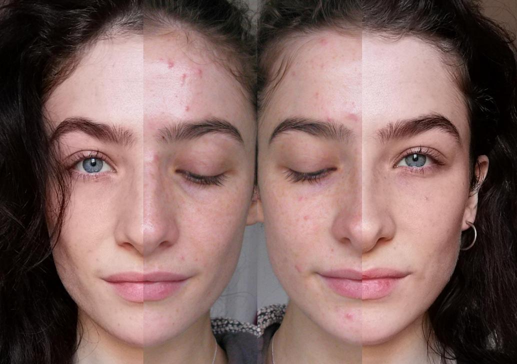 It also erased acne and deep-set dark