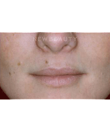 dr-charles-crutchfield-aesthetic-injectables-b