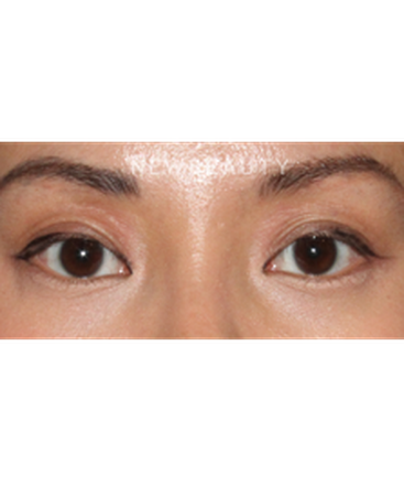 dr-lily-lee-asian-eyelid-revision-surgery-b