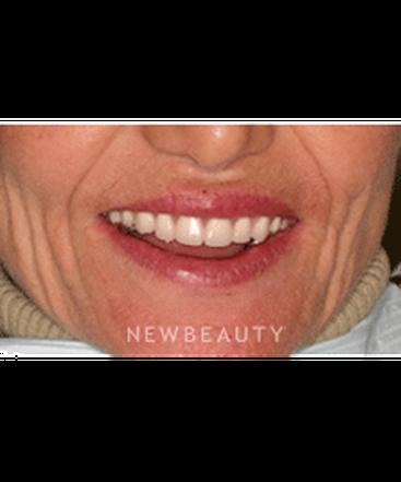 dr-neal-patel-smile-makeover-b