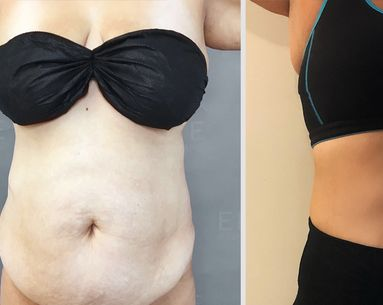 Not Ready for Liposuction? This Minimally-Invasive Procedure Delivers Life-Changing Results
