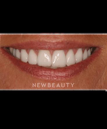 dr-sam-sadati-cosmetic-restoration-b
