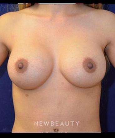 dr-cynthia-m-poulos-breast-implant-b