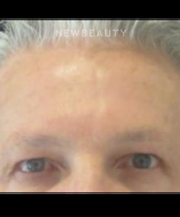 dr-kim-nichols-botox-b