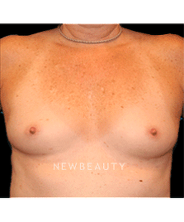 dr-christine-hamori-breast-enhancement-b
