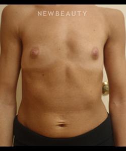 dr-matthew-endara-breast-augmentation-b