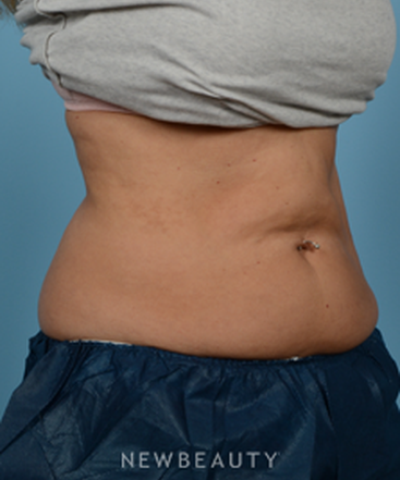 dr-jeffrey-wise-coolsculpting-b