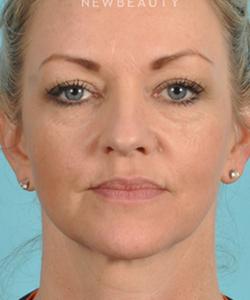 dr-bradley-bengtson-injectables-fillers-b