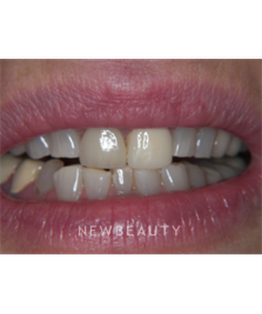 dr-jan-linhart-smile-makeover-b