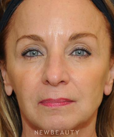 dr-janet-allenby-facial-rejuvenation-b
