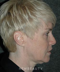 dr-andrew-jacono-mini-facelift-b