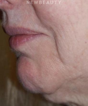 dr-marina-peredo-botox-b