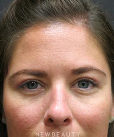 dr-elie-levine-upper-blepharoplasty-b