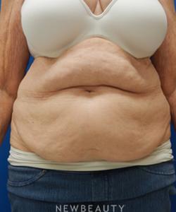 dr-matthew-endara-tummy-tuck-b
