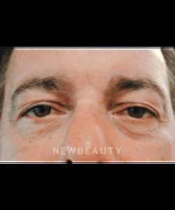dr-leeann-klausner-blepharoplasty-b