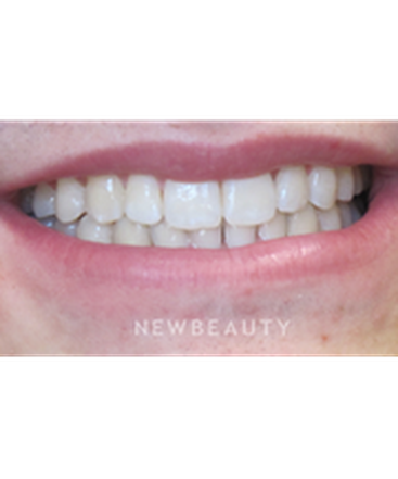 dr-claudia-cotca-teeth-whitening-b