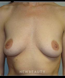 dr-sanjay-grover-breast-augmentation-b