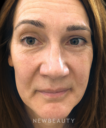 Stockton facial rejuvenation