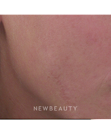 dr-ann-c-zedlitz-lasers-scar-treatment-b