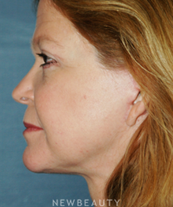 dr-brent-smith-cheekneck-mini-lift-blepharoplasty-b