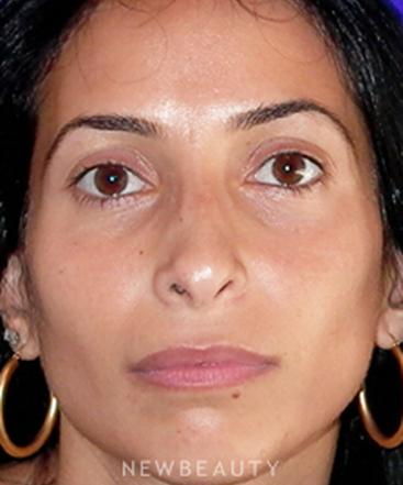 dr-davis-nguyen-rhinoplasty-b